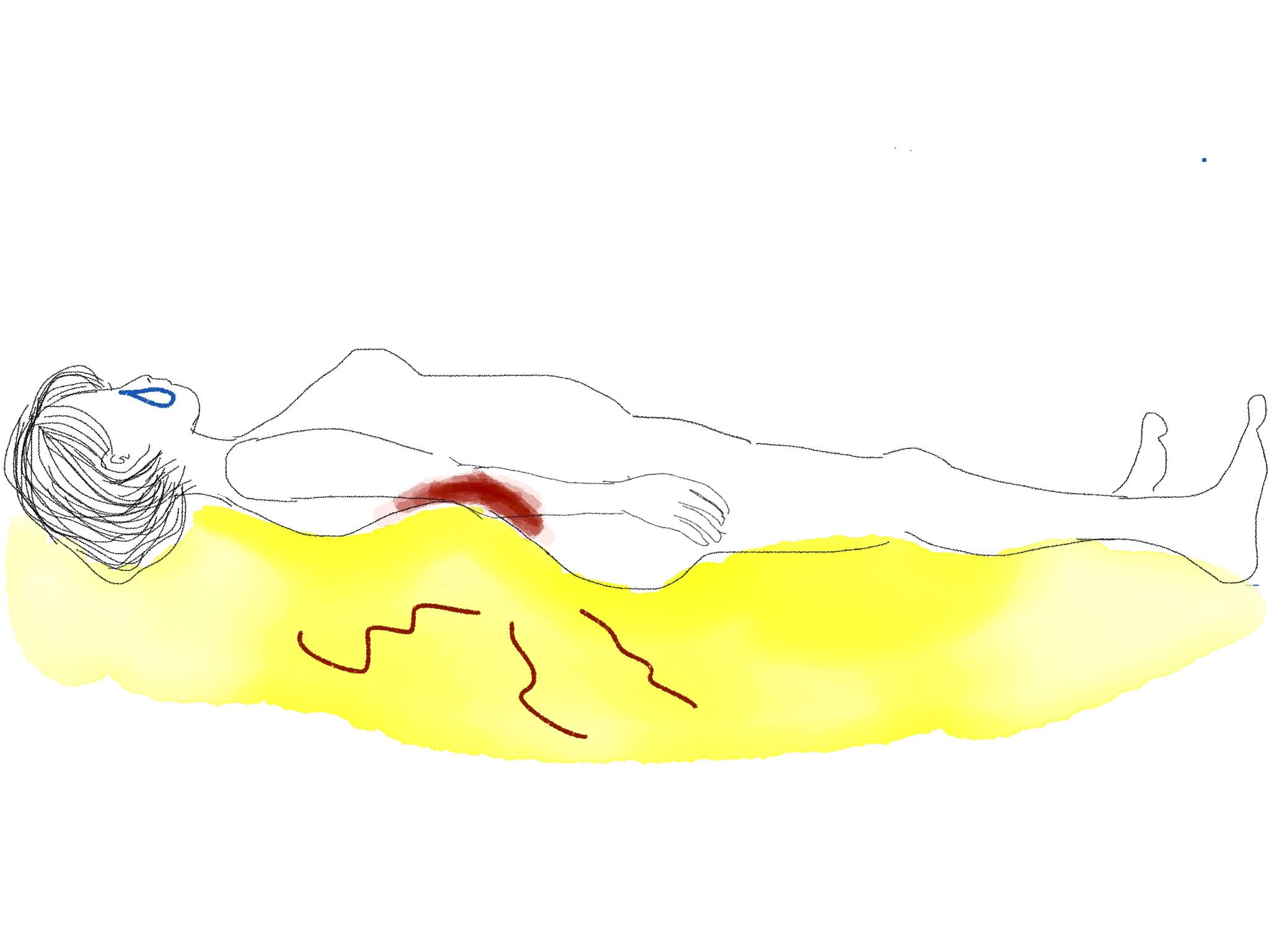 仰向けで寝れない腰痛の女性